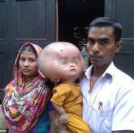 Bangladeşli Emon'un kafası sürekli büyüyor