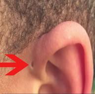 İnsan kulağının üzerinde yer alan delik nedir?