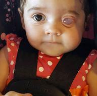 Tek gözü olmayan bebek hayrete düşürdü!